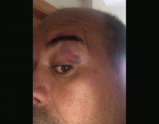 Un árbitro de Colombicultura denuncia por agresión al alcalde de Alcadozo y a su hijo